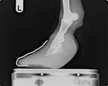An x-ray of a laminitis foot